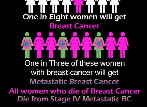 Stomp Out Breast Cancer – Live from Stage IV