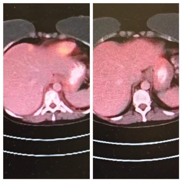 The bright yellow spot on left is my tumor spot on my liver, on right it is gone.