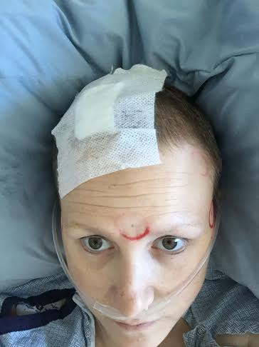 Right after surgery. Red marks held metal discs that helped guide the location of my brain inside and outside the PET-CT.