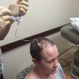 Chemo in my Braaaaiiiinnnsss