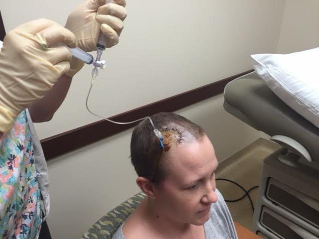 Getting intrathecal chemo chemo in my ommaya port