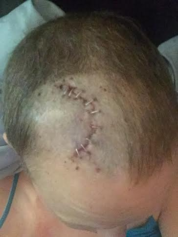 What my head looks like now. Staples come out in just over a week.